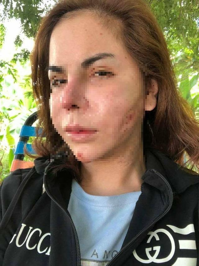 Linda bị biến dạng mặt khi lấy silicon ra khỏi mặt. Ảnh: FB