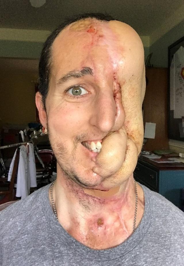 Với khuôn mặt đang được tái tạo dang dở, Tim vẫn nở nụ cười rạng rỡ