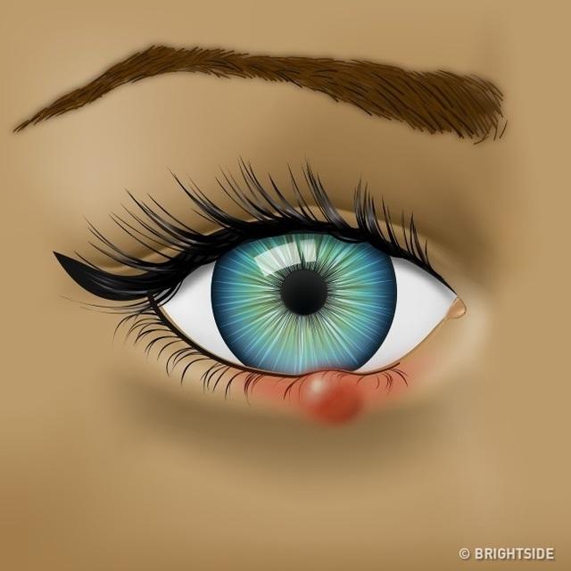 Đôi mắt đang cố gắng cho bạn biết những vấn đề sức khỏe nào? - 1