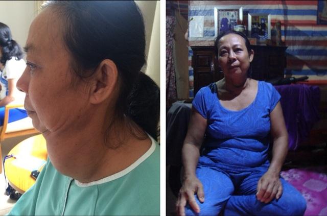 Bà Diện trước và sau khi phẫu thuật khối bướu tuyến giáp. Ca mổ thành công đã mang lại cuộc sống hoàn toàn mới, giúp bà thoát khỏi khối bướu đeo đẳng ròng rã suốt 22 năm