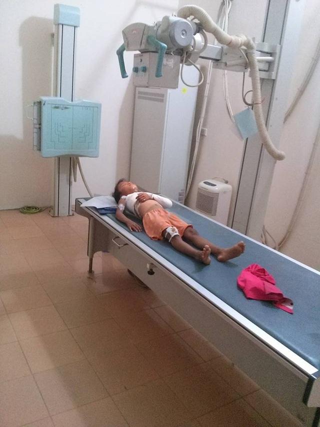 Bé P.T.K.H. gãy xương quai xanh, sưng trợt đầu gối vì bị cửa sắt cổng trường đổ đè vào người, hiện đang điều trị tại bệnh viện tỉnh Vĩnh Phúc.