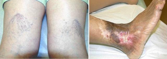 Hình trái- Bệnh nhân suy tĩnh mạch gấp độ nhẹ; Hình bên phải- Bệnh nhân suy tĩnh mạch nặng bị biến đổi sắc tố da kèm vết loét đã lành