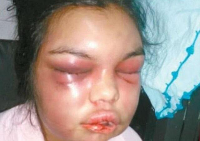 Gương mặt biến dạng của Adolfina sau khi bị chồng đánh