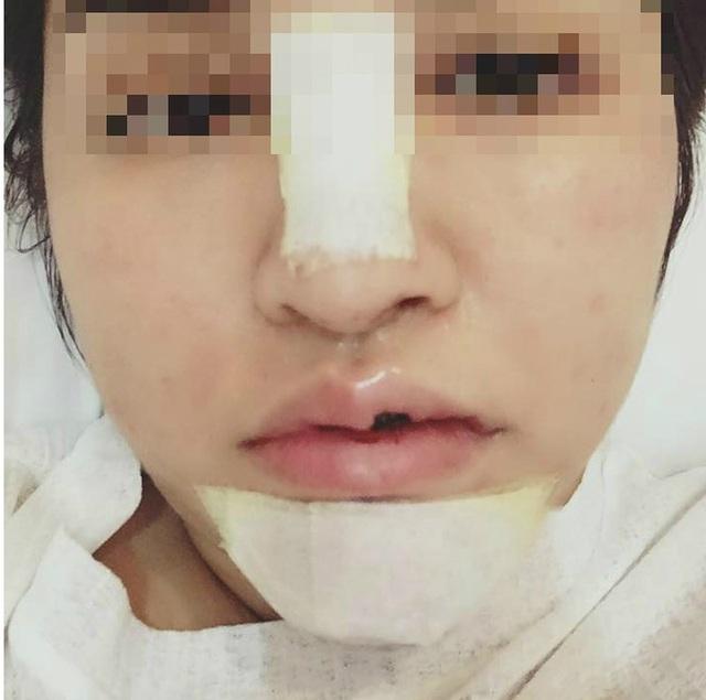Bạn TTV chịu bao đau đớn khi lấy silicon ra khỏi mặt vì sợ những biến chứng khủng khiếp của nó. Ảnh: FB