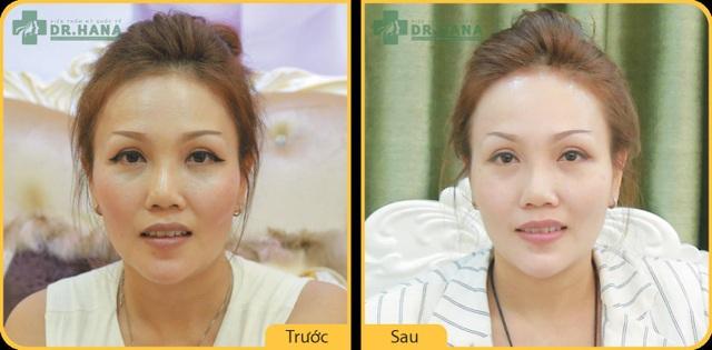 Hình ảnh trước và sau khi căng da mặt của Việt Kiều Mỹ Hoàn Thy