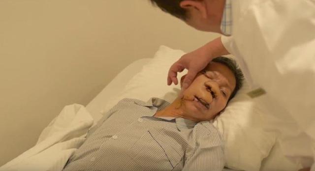 5 ngày sau mổ, ông Sứ đã hồi phục sức khỏe, khối u được loại bỏ, phần tạo hình tiến triển tốt