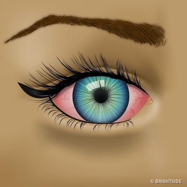 Đôi mắt đang cố gắng cho bạn biết những vấn đề sức khỏe nào? - 3