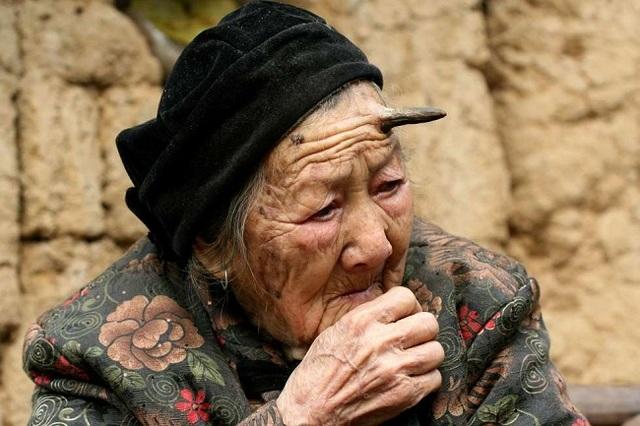 Từ khi bước sang tuổi 100, cụ bà bỗng mọc sừng trên đầu