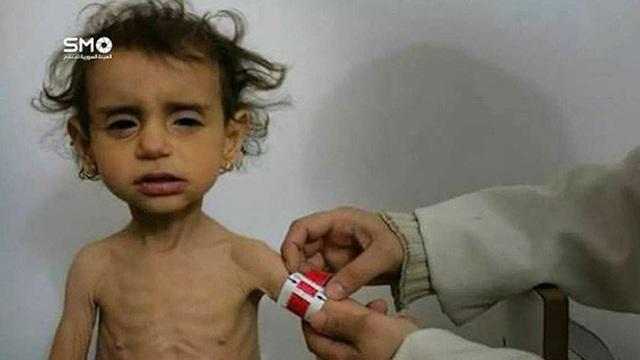 Bé gái 2 tuổi bị suy dinh dưỡng ở Ghouta. Ảnh: Twitter