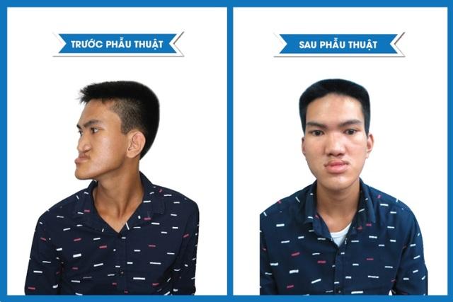 Hình ảnh em Trần Văn Đức trước và sau phẫu thuật