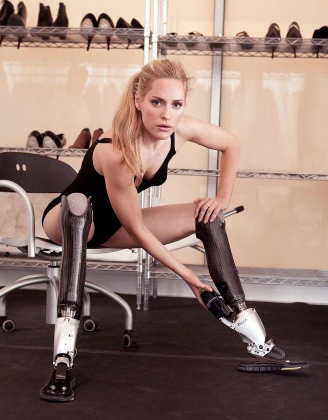 Aimee là một vận động viên khuyết tật vô cùng xinh đẹp