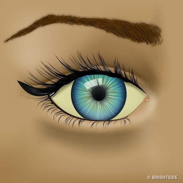 Đôi mắt đang cố gắng cho bạn biết những vấn đề sức khỏe nào? - 6