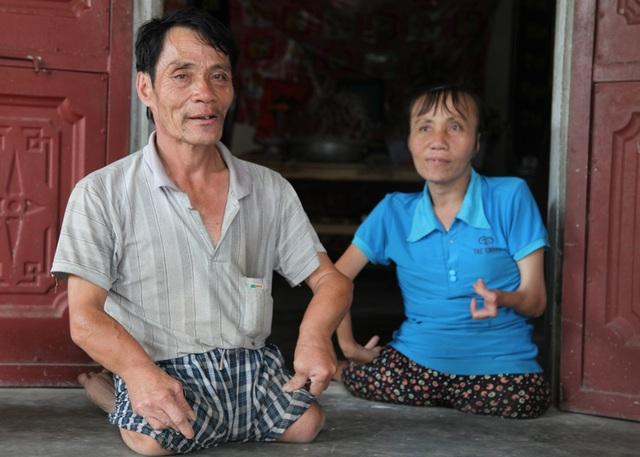Anh Què và em gái chị Hài mang dị tật trên mình.