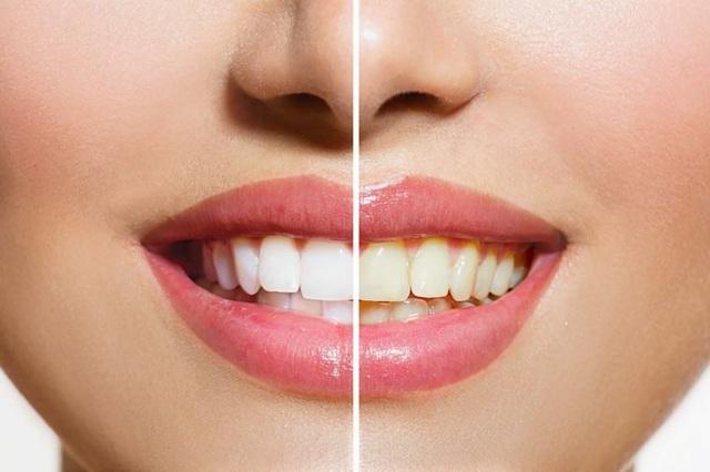 Răng màu vàng khoẻ hơn răng trắng sáng? - 1