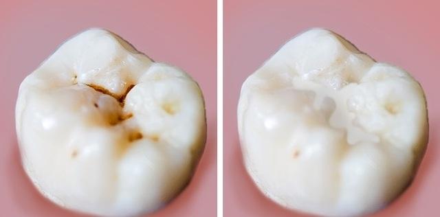 8 sai lầm phổ biến khi chăm sóc răng - 8