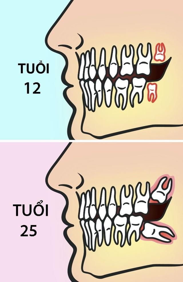 Vì sao nên nhổ răng khôn trước 25 tuổi? - 1