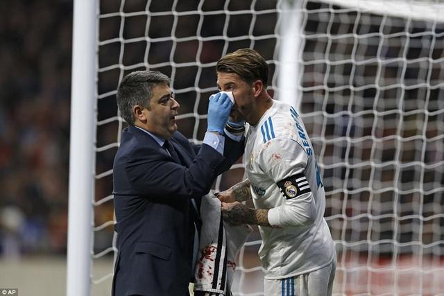 Sergio Ramos đổ máu sau tình huống va chạm