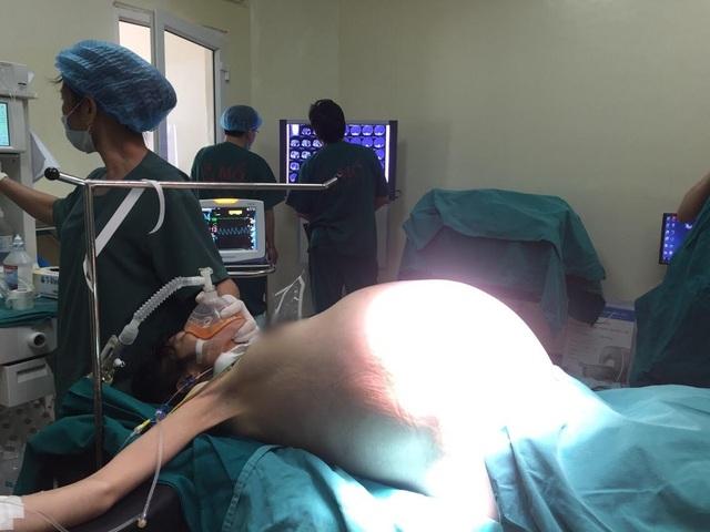 Khối u khủng chèn ép khiến bệnh nhân suy kiệt, khó thở, không ăn uống được. Ảnh: BS cung cấp.