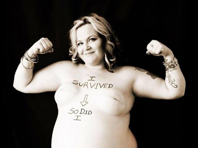 Bức ảnh nổi tiếng về ý chí dũng cảm chiến đấu với ung thư vú và giành chiến thắng của thai phụ Kimi Maxwell (Australia) năm 2013. Hiện cô vẫn đang sống khỏe mạnh.