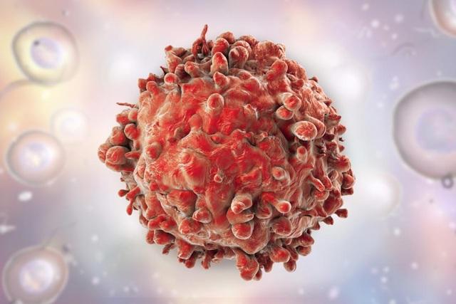 Tế bào bạch cầu ung thư.