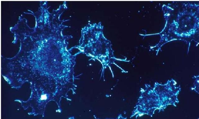 Axit amin trong thức ăn có thể là chìa khóa tiêu diệt ung thư - 1