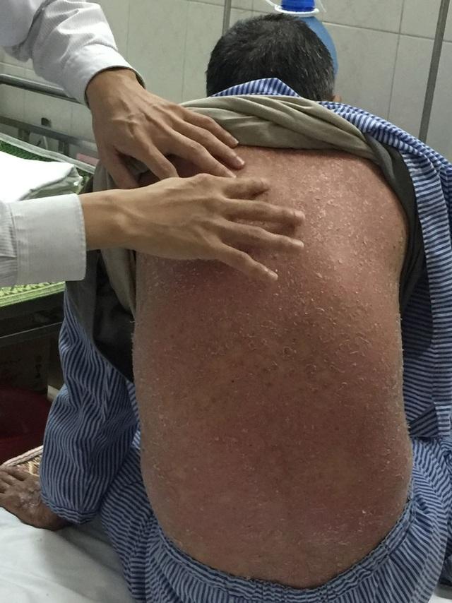 Bệnh nhân bị sốt, bong tróc da toàn thân sau khi uống 6 thìa thuốc đông y (Ảnh: T.P)