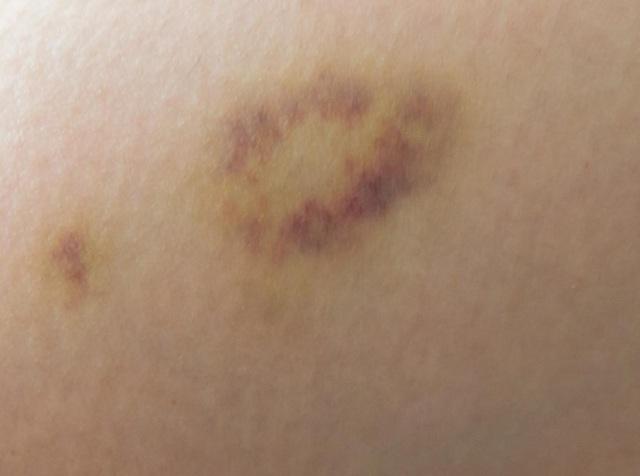 Vết bầm tím trên ngực có đáng ngại không? - 1