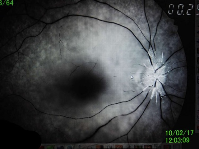Cô gái mù một mắt vì chơi video game trên điện thoại gần như không nghỉ - 2