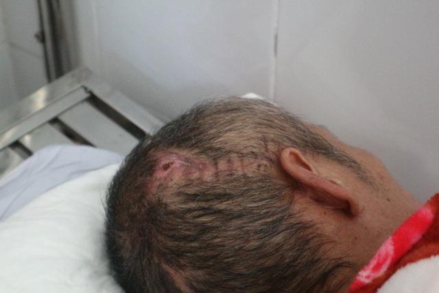 Ông Nguyễn Văn Tứ bị tai biến gây xuất huyết não, bán cầu não phải trong tình trạng được nuôi cấy bên ngoài