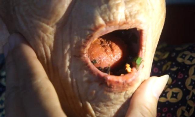 Hàm dưới cụ Đang có 4 vật cứng nhô lên, nghi răng mới mọc.