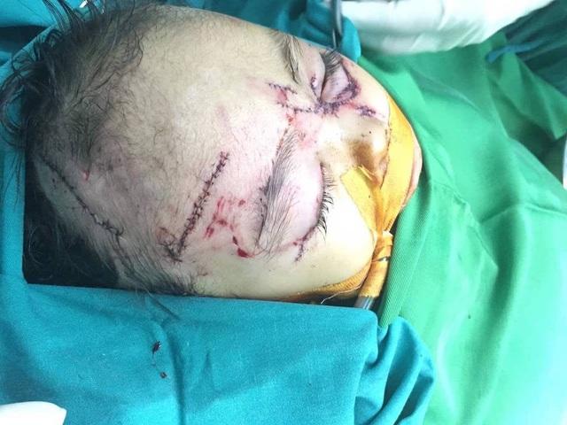 Bé trai V.H (2 tuổi, trú tại xã Diễn Kỷ, Diễn Châu, Nghệ An) bị chó nhà cắn vào mặt.