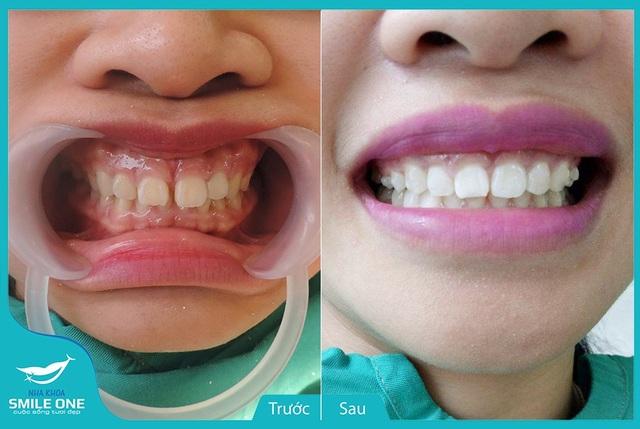 Hình ảnh trước và sau khi chỉnh nha Invisalign tại Nha khoa Smile One