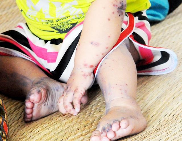 Toàn tỉnh Long An đã phát hiện gần 2000 ca mắc bệnh tay-chân-miệng và có thể tiếp tục gia tăng.