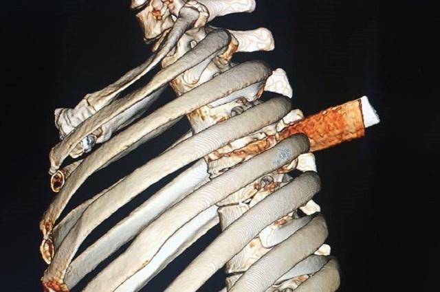 Lưỡi dao xuyên từ lưng, thấu lồng ngực bệnh nhân