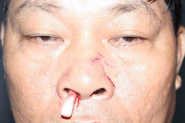 Anh Thanh bị đánh gãy sống mũi