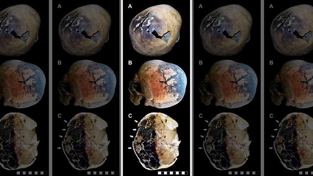Hộp sọ của các nạn nhân với các dấu vết cho thấy có dấu hiệu bị nổ tung do ảnh hưởng bởi sức nhiệt khủng khiếp.