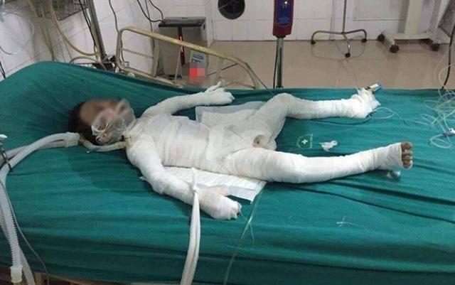 Do bị bỏng quá nặng, cháu Trần Gia K. (6 tuổi) đã tử vong (Ảnh: An ninh thủ đô).