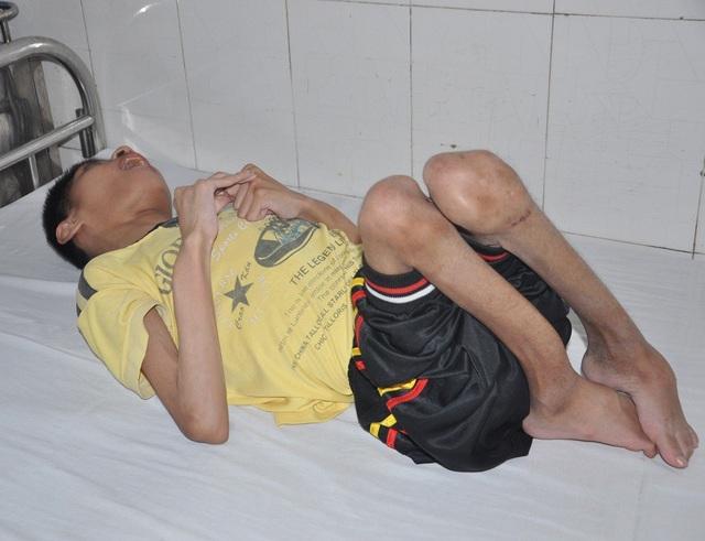 Cậu bé Ninh chân tay co quắp bởi căn bệnh bại não.