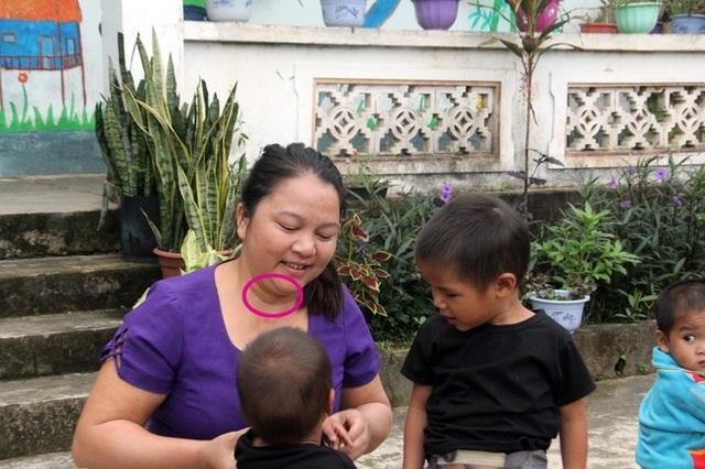 Cô Hương vừa trải qua ca phẫu thuật cắt khối u nhỏ ở cổ vào hè vừa qua. Sau ca phẫu thuật dù được khuyến cáo nghỉ ngơi nhưng cô Hương vẫn quay trở lại với những đứa trẻ người dân tộc Chứt.
