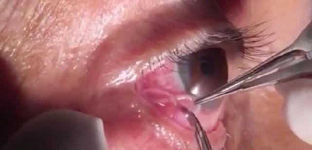 Một con giun chỉ xuất hiện trong lòng trắng mắt của một bệnh nhân tại Ấn Độ khiến nhiều người không khỏi rùng mình.