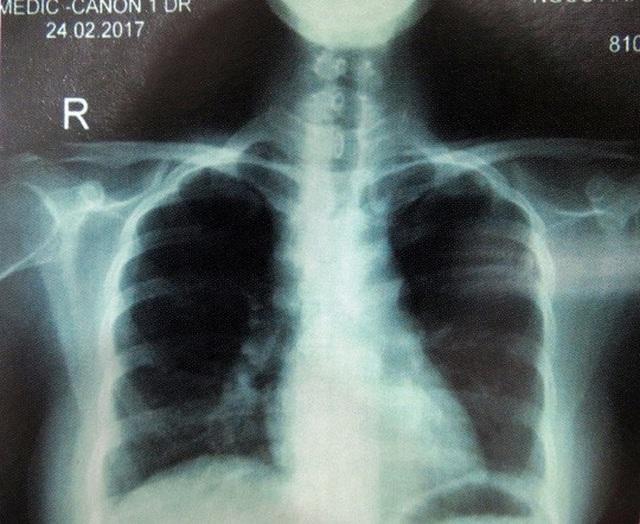 Kết quả chẩn đoán hình ảnh cho thấy những tổn thương trên phổi bệnh nhân - ảnh do BV Da liễu cung cấp