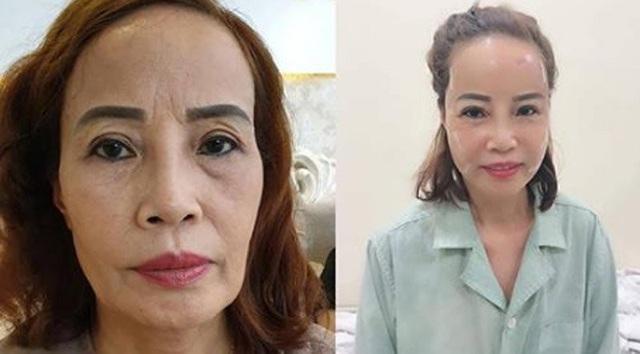 Khuôn mặt khác lạ của cô dâu 62 tuổi sau khi tân trang nhan sắc