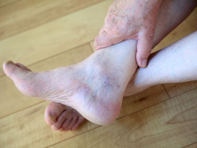 Các dấu hiệu ở chân chứng tỏ bệnh tim mạch - 1