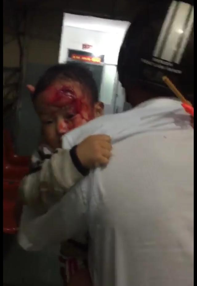 Người bố ôm con trai máu me bê bết chạy tìm bác sĩ (ảnh cắt từ clip)