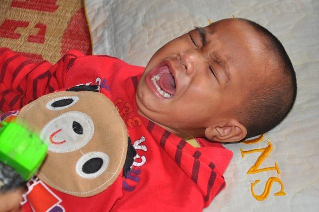 Bảo Nam (2 tuổi) bị hội chứng thận hư kháng thuốc nên em liên tục quấy khóc.