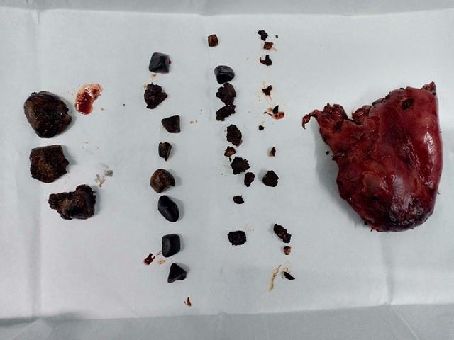 Túi mật bệnh nhân sau khi cắt và một phần sỏi được gắp ra ngoài