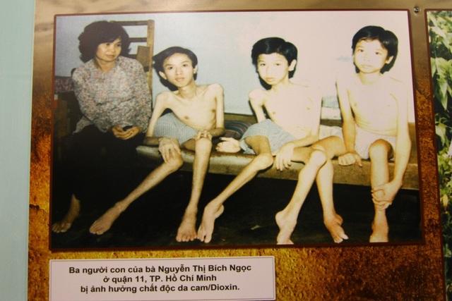 Người mẹ Nguyễn Thị Bích Ngọc (quận 11, TP Hồ Chí Minh) bên 3 người con đều bị ảnh hưởng chất độc da cam/đioxin