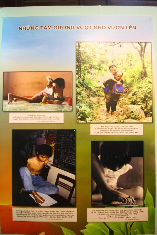 Những hình ảnh vượt khó vươn lên của các nạn nhân da cam