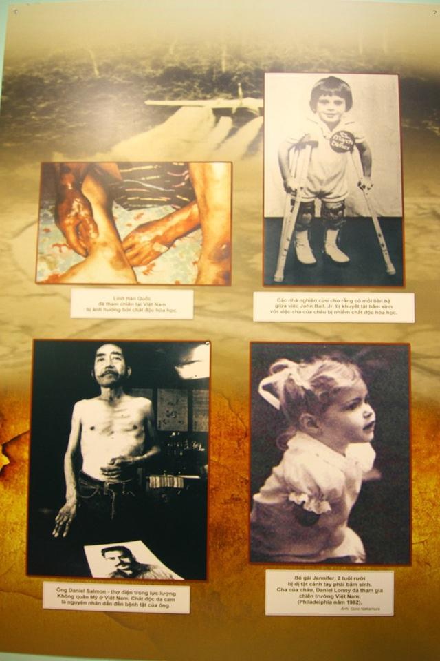 Những hình ảnh cho thấy lính Hàn Quốc tham gia vào chiến tranh tại Việt Nam, nhân viên không quân Mỹ và các con của quân nhân Mỹ đã bị ảnh hưởng bởi thứ chất độc khủng khiếp này