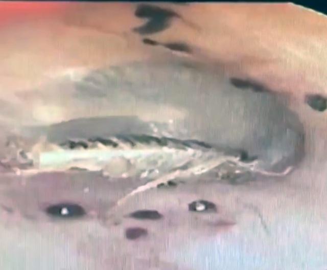 Hình ảnh con dế nhỏ chui vào tai một bệnh nhân ở Hải Dương